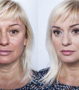 Boyko_Beauty_School_Kritskaya_Viktoriya (3)